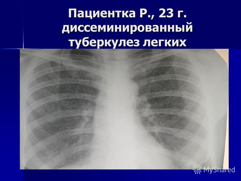 Пациентка Р., 23 г. диссеминированный туберкулез легких