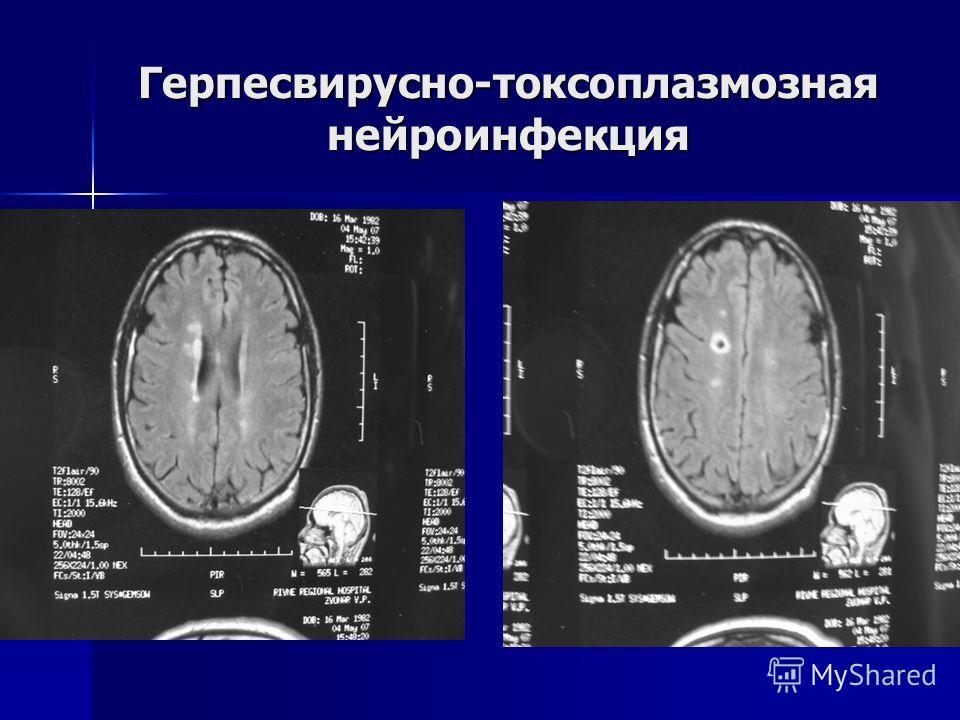 Герпесвирусно-токсоплазмозная нейроинфекция