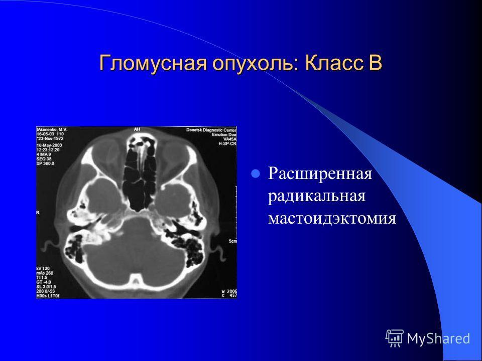 Гломусная опухоль: Класс В Расширенная радикальная мастоидэктомия