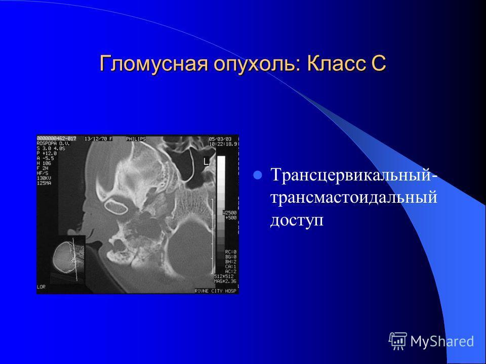 Гломусная опухоль: Класс С Трансцервикальный- трансмастоидальный доступ