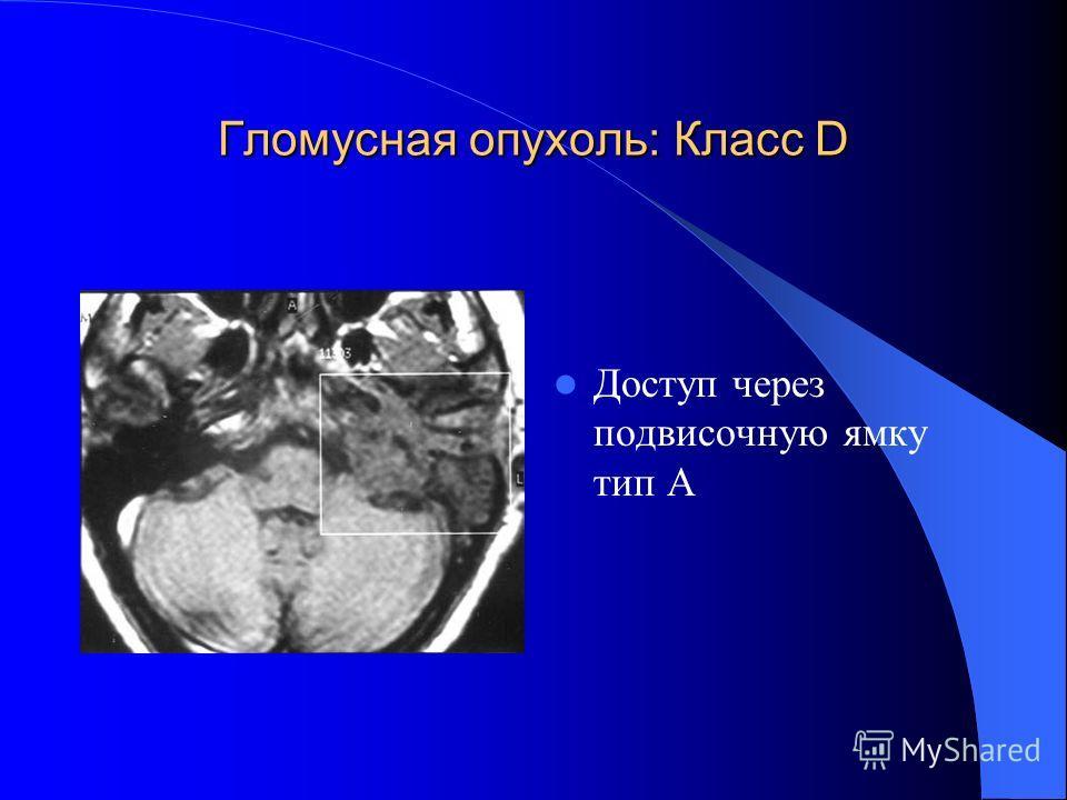 Гломусная опухоль: Класс D Доступ через подвисочную ямку тип А