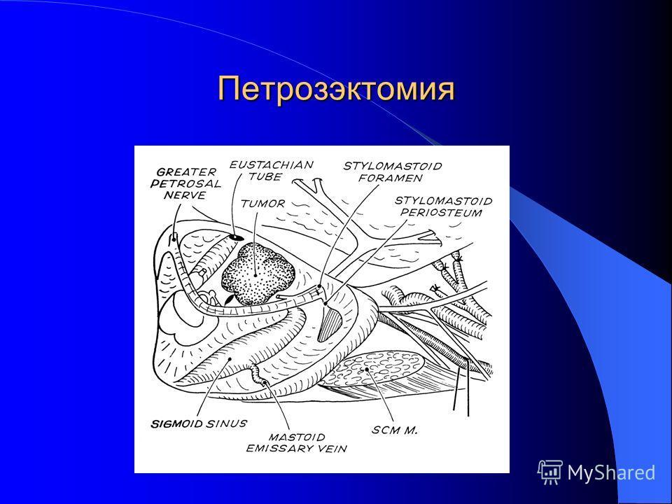 Петрозэктомия