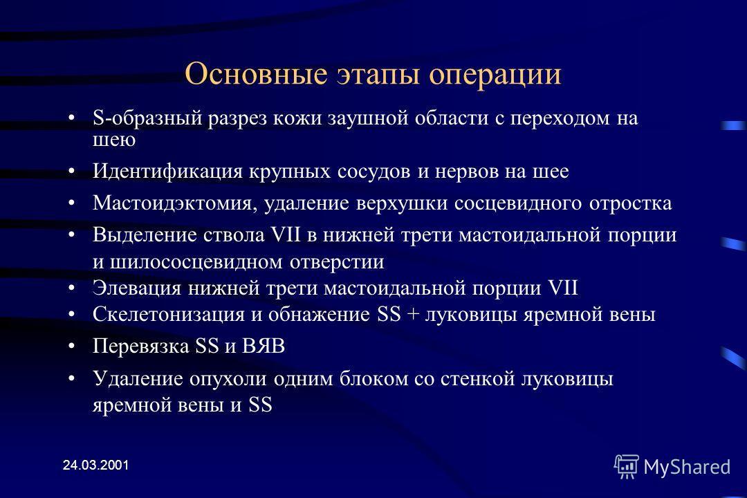 Мастоидэктомия