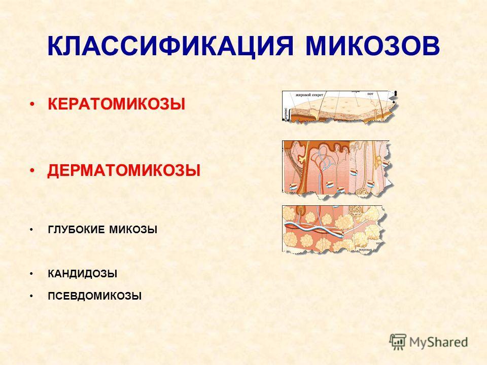 КЛАССИФИКАЦИЯ МИКОЗОВ КЕРАТОМИКОЗЫ ДЕРМАТОМИКОЗЫ ГЛУБОКИЕ МИКОЗЫ КАНДИДОЗЫ ПСЕВДОМИКОЗЫ