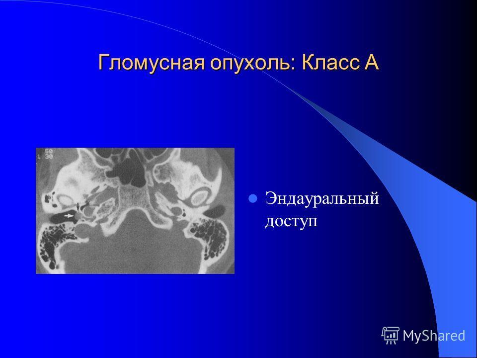 Гломусная опухоль: Класс А Эндауральный доступ