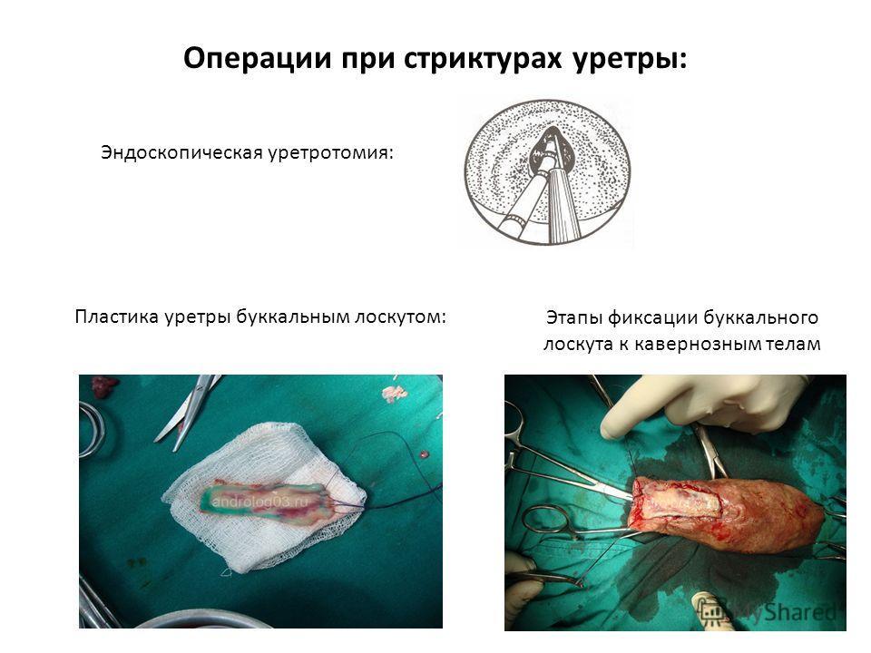 Операции при стриктурах уретры: Эндоскопическая уретротомия: Пластика уретры буккальным лоскутом: Этапы фиксации буккального лоскута к кавернозным телам