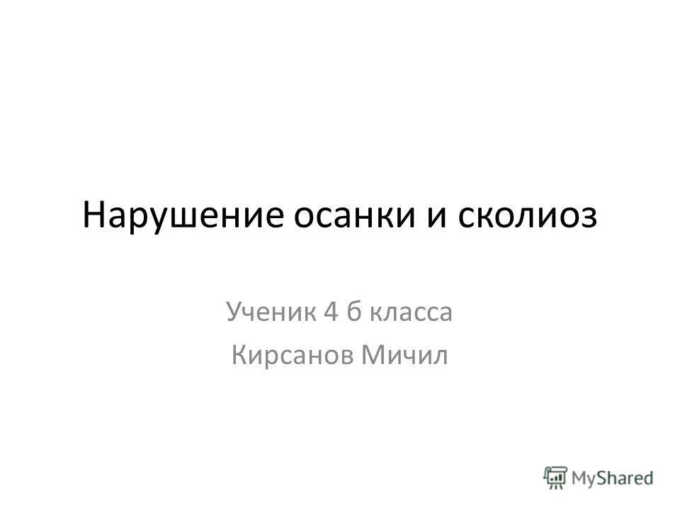 Нарушение осанки и сколиоз Ученик 4 б класса Кирсанов Мичил