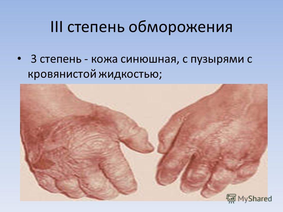 III степень обморожения 3 степень - кожа синюшная, с пузырями с кровянистой жидкостью;
