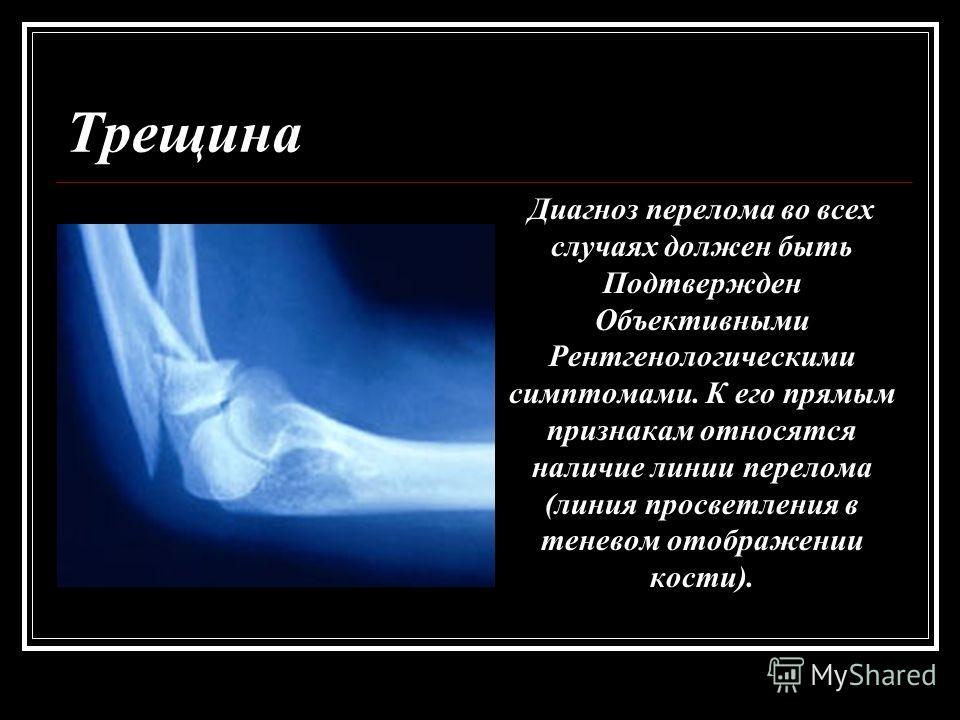 Трещина Диагноз перелома во всех случаях должен быть Подтвержден Объективными Рентгенологическими симптомами. К его прямым признакам относятся наличие линии перелома (линия просветления в теневом отображении кости).