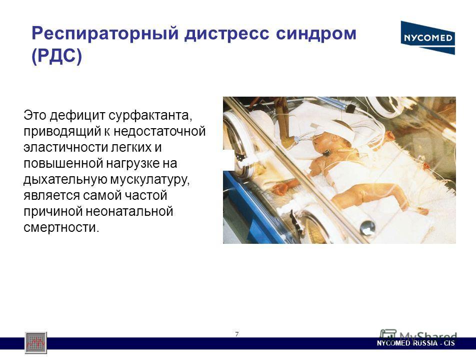 NYCOMED RUSSIA - CIS 7 Респираторный дистресс синдром (РДС) Это дефицит сурфактанта, приводящий к недостаточной эластичности легких и повышенной нагрузке на дыхательную мускулатуру, является самой частой причиной неонатальной смертности.