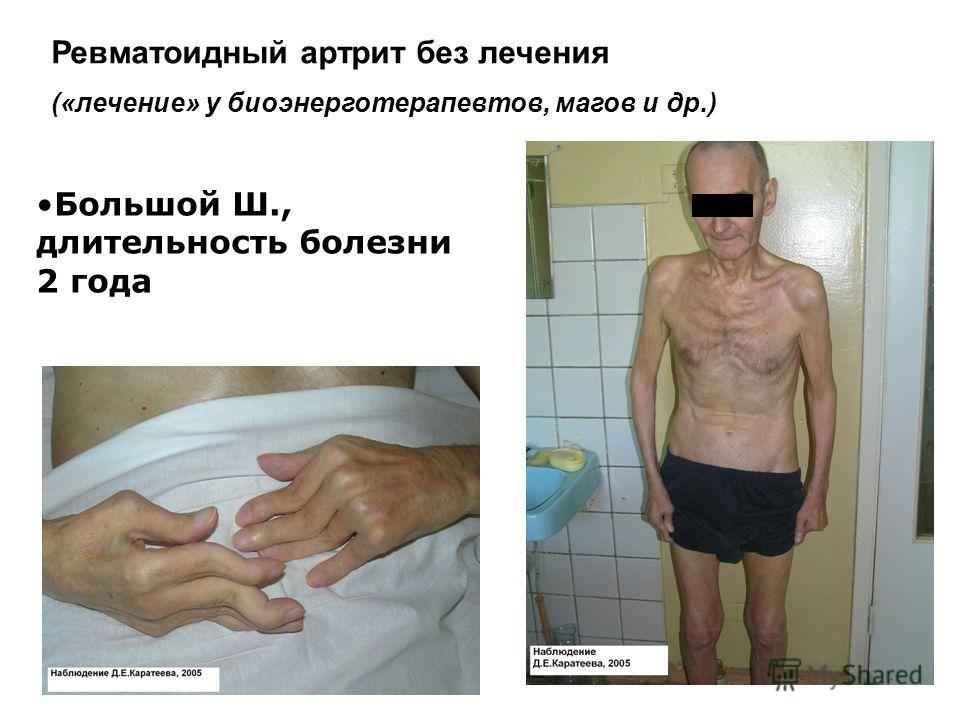 Ревматоидный артрит без лечения («лечение» у биоэнерготерапевтов, магов и др.) Большой Ш., длительность болезни 2 года