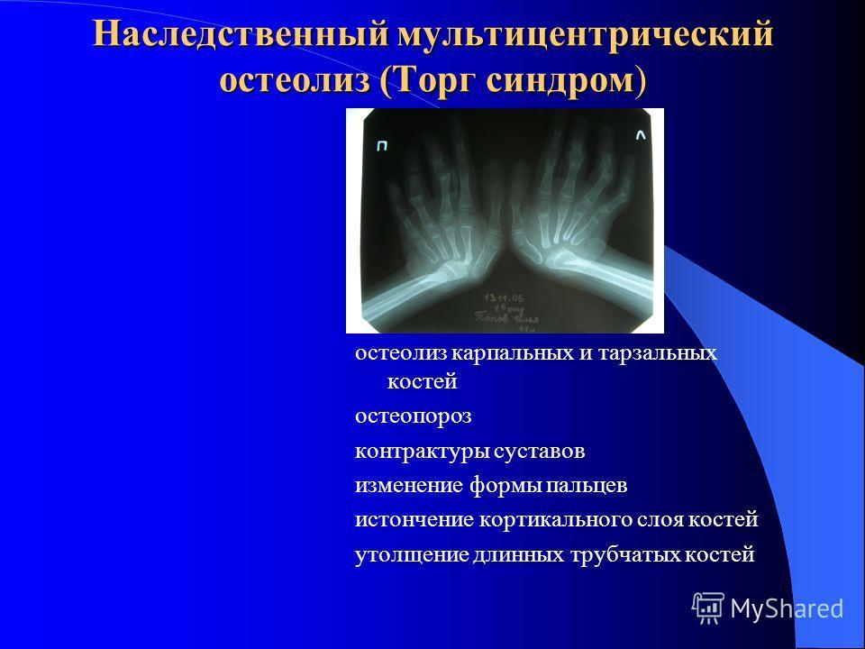 Наследственный мультицентрический остеолиз (Торг синдром) остеолиз карпальных и тарзальных костей остеопороз контрактуры суставов изменение формы пальцев истончение кортикального слоя костей утолщение длинных трубчатых костей