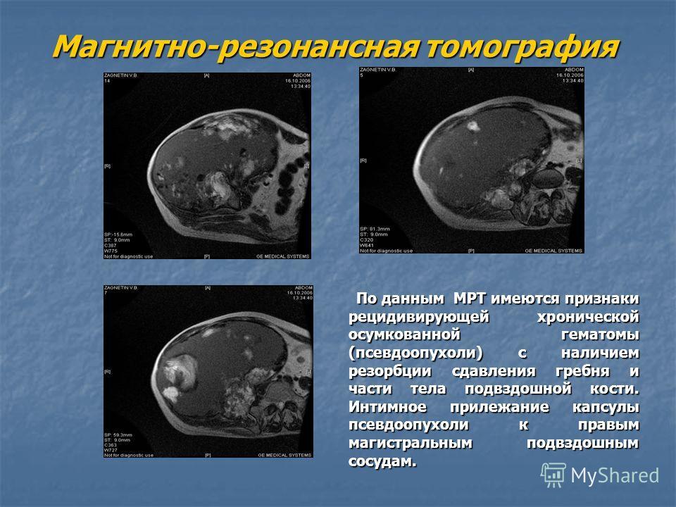 Магнитно-резонансная томография По данным МРТ имеются признаки рецидивирующей хронической осумкованной гематомы (псевдоопухоли) с наличием резорбции сдавления гребня и части тела подвздошной кости. Интимное прилежание капсулы псевдоопухоли к правым м