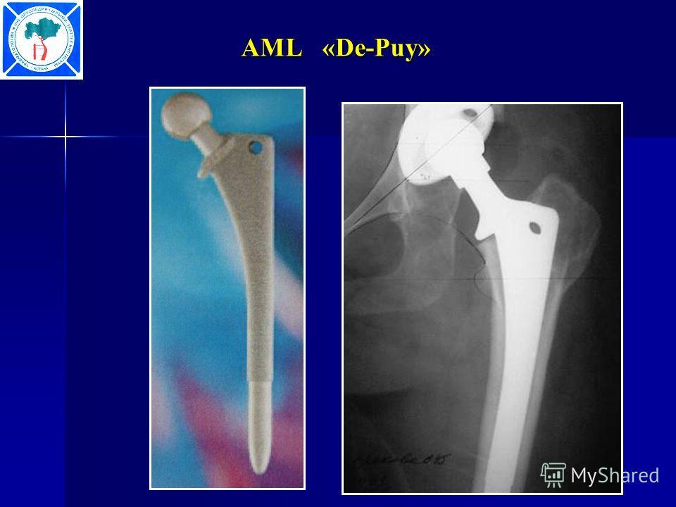AML «De-Puy»