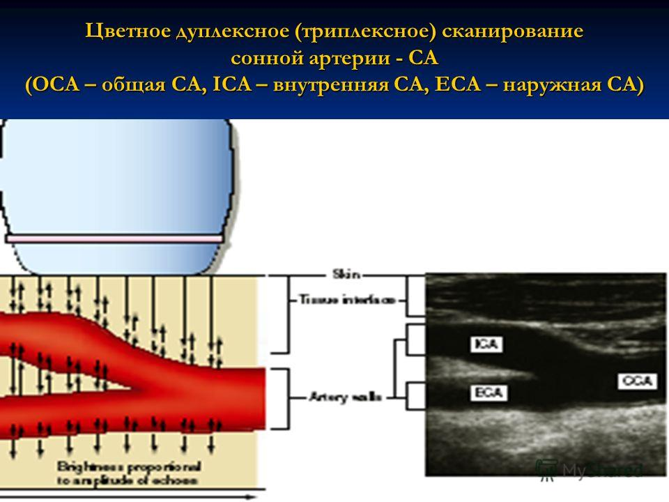 Цветное дуплексное (триплексное) сканирование сонной артерии - СА (OCA – общая СА, ICA – внутренняя СА, ECA – наружная СА)
