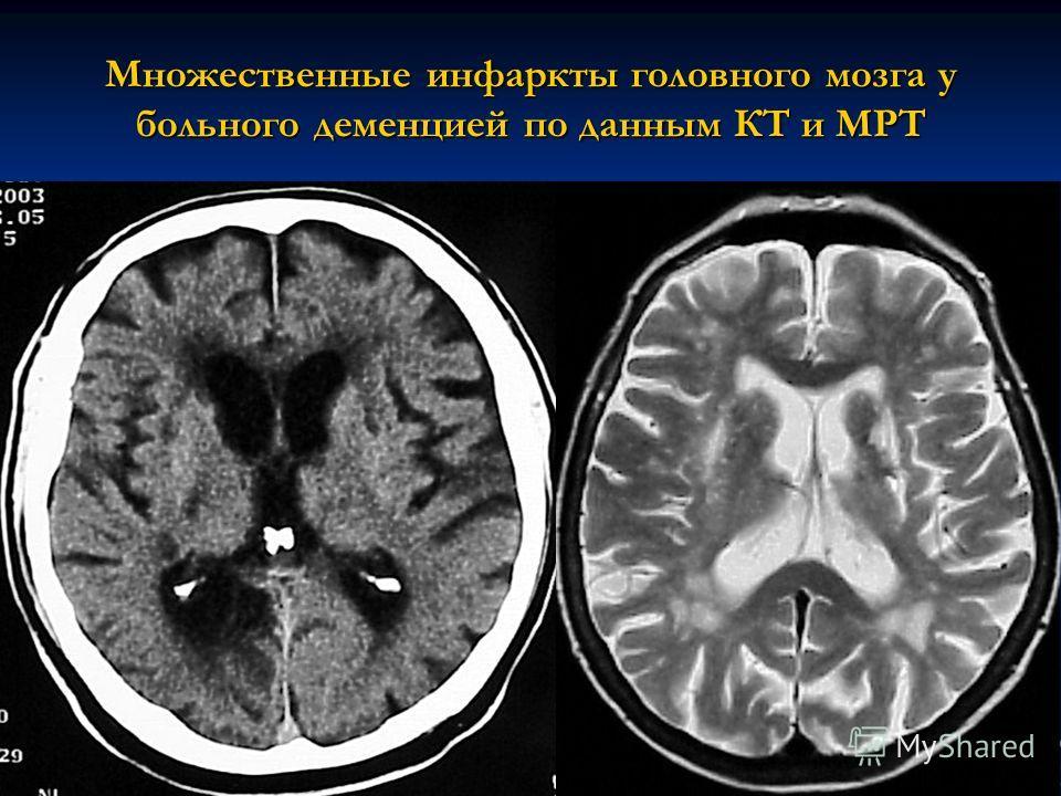 Множественные инфаркты головного мозга у больного деменцией по данным КТ и МРТ