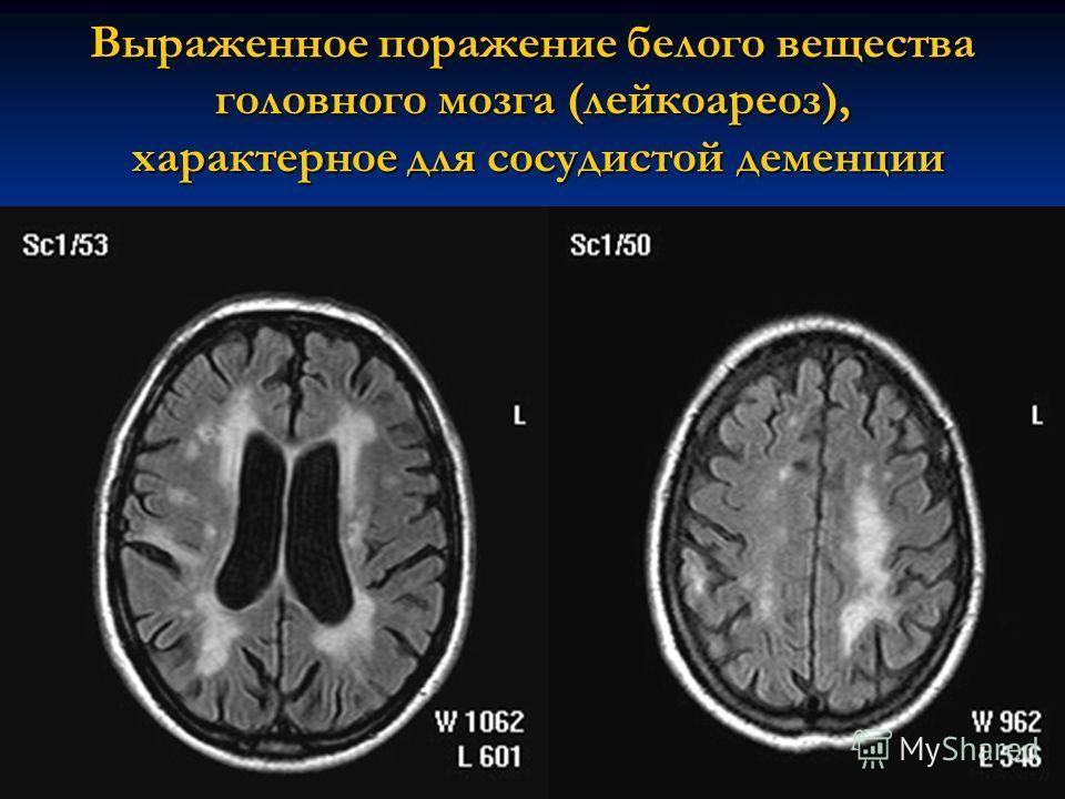 Выраженное поражение белого вещества головного мозга (лейкоареоз), характерное для сосудистой деменции