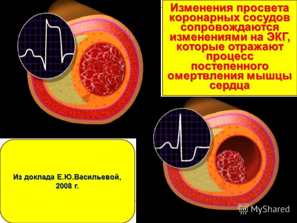 Изменения просвета коронарных сосудов сопровождаются изменениями на ЭКГ, которые отражают процесс постепенного омертвления мышцы сердца Из доклада Е.Ю.Васильевой, 2008 г.