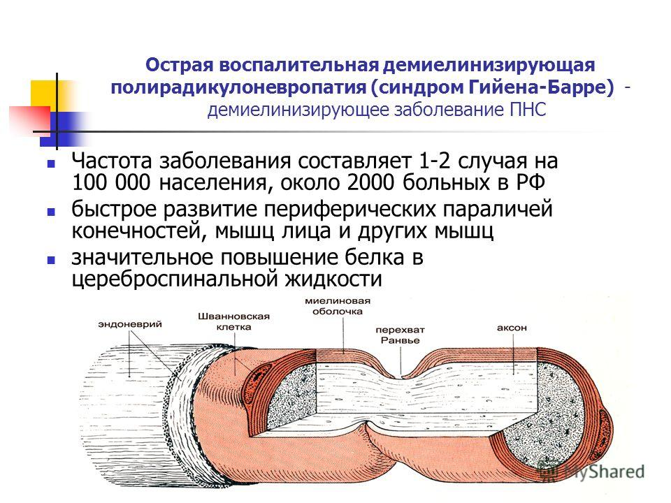 Острая воспалительная демиелинизирующая полирадикулоневропатия (синдром Гийена-Барре) - демиелинизирующее заболевание ПНС Частота заболевания составляет 1-2 случая на 100 000 населения, около 2000 больных в РФ быстрое развитие периферических параличе