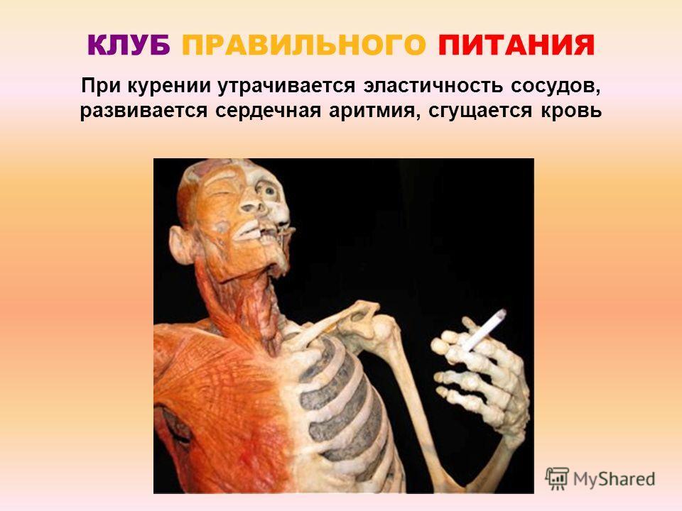 КЛУБ ПРАВИЛЬНОГО ПИТАНИЯ При курении утрачивается эластичность сосудов, развивается сердечная аритмия, сгущается кровь