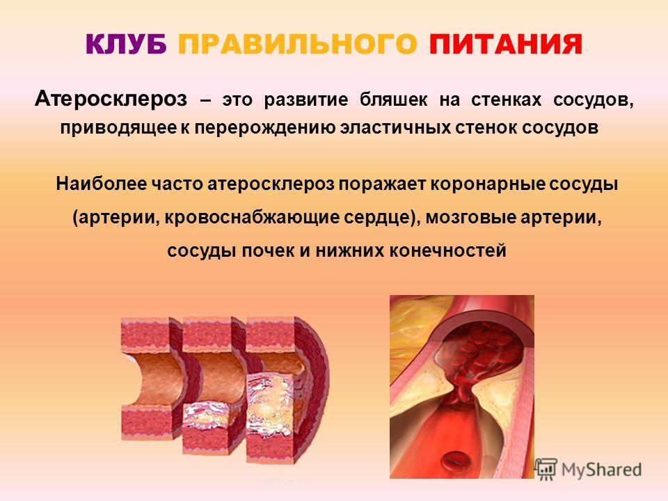 Атеросклероз – это развитие бляшек на стенках сосудов, приводящее к перерождению эластичных стенок сосудов КЛУБ ПРАВИЛЬНОГО ПИТАНИЯ Наиболее часто атеросклероз поражает коронарные сосуды (артерии, кровоснабжающие сердце), мозговые артерии, сосуды поч