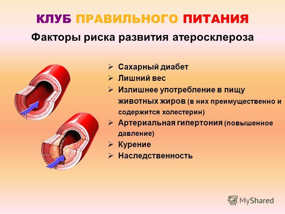 Сахарный диабет Лишний вес Излишнее употребление в пищу животных жиров (в них преимущественно и содержится холестерин) Артериальная гипертония (повышенное давление) Курение Наследственность Факторы риска развития атеросклероза КЛУБ ПРАВИЛЬНОГО ПИТАНИ