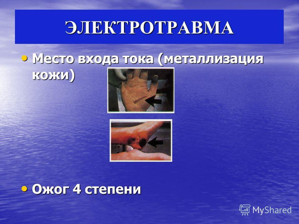 ЭЛЕКТРОТРАВМА Место входа тока (металлизация кожи) Место входа тока (металлизация кожи) Ожог 4 степени Ожог 4 степени