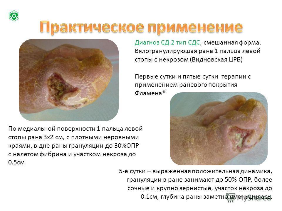 Диагноз СД 2 тип СДС, смешанная форма. Вялогранулирующая рана 1 пальца левой стопы с некрозом (Видновская ЦРБ) Первые сутки и пятые сутки терапии с применением раневого покрытия Фламена® По медиальной поверхности 1 пальца левой стопы рана 3х2 см, с п