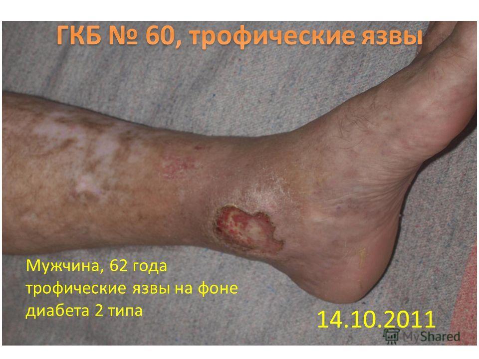 14.10.2011 Мужчина, 62 года трофические язвы на фоне диабета 2 типа