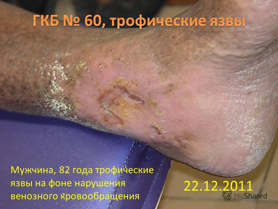 22.12.2011 Мужчина, 82 года трофические язвы на фоне нарушения венозного кровообращения