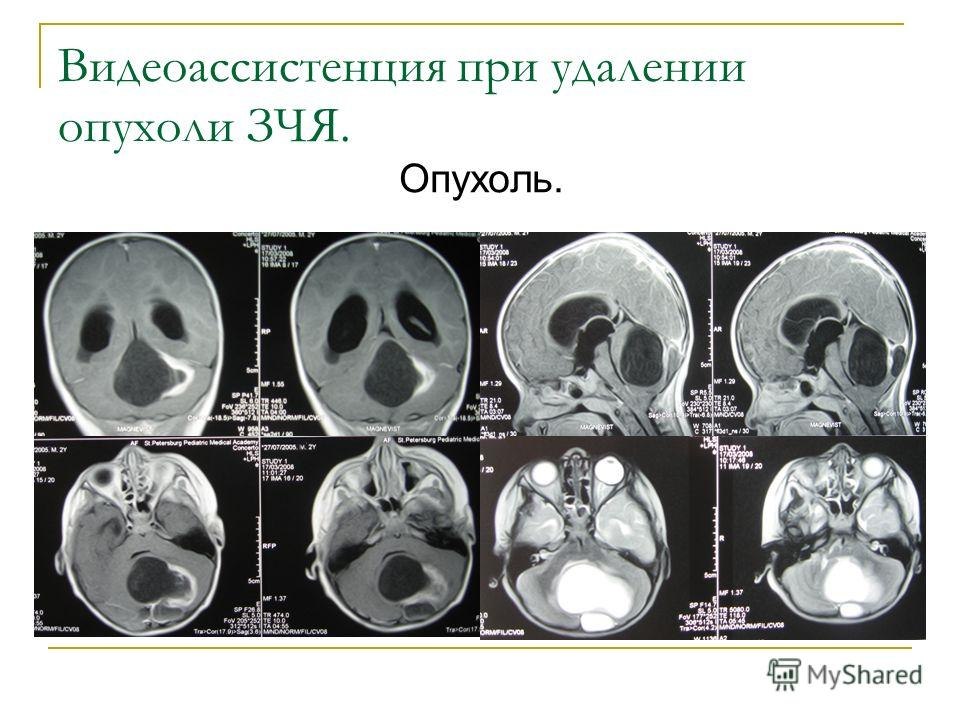 Видеоассистенция при удалении опухоли ЗЧЯ. Опухоль.