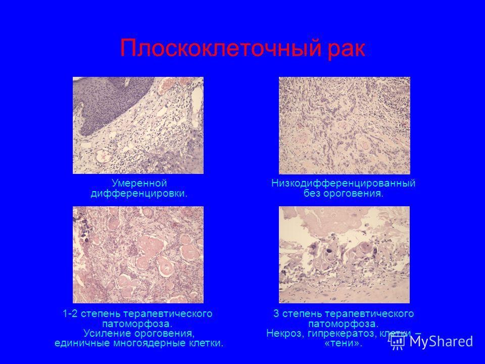 Плоскоклеточный рак Умеренной дифференцировки. Низкодифференцированный без ороговения. 1-2 степень терапевтического патоморфоза. Усиление ороговения, единичные многоядерные клетки. 3 степень терапевтического патоморфоза. Некроз, гипрекератоз, клетки