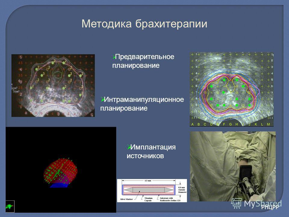 Предварительное планирование Интраманипуляционное планирование Имплантация источников Методика брахитерапии РНЦРР