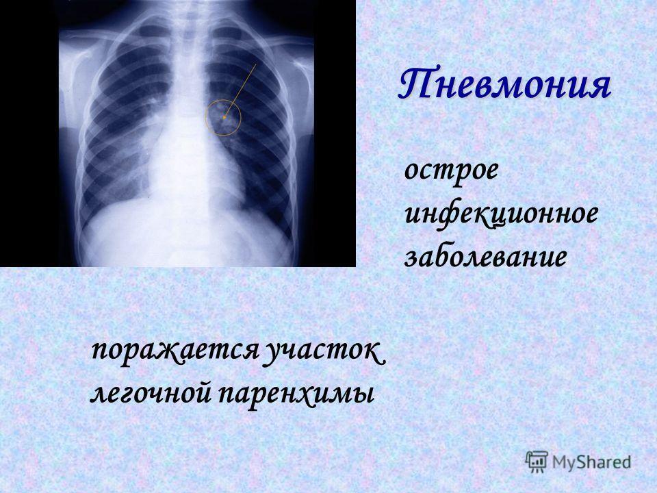 Пневмония острое инфекционное заболевание поражается участок легочной паренхимы