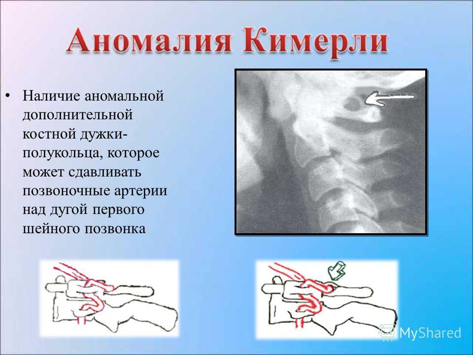 Наличие аномальной дополнительной костной дужки- полукольца, которое может сдавливать позвоночные артерии над дугой первого шейного позвонка
