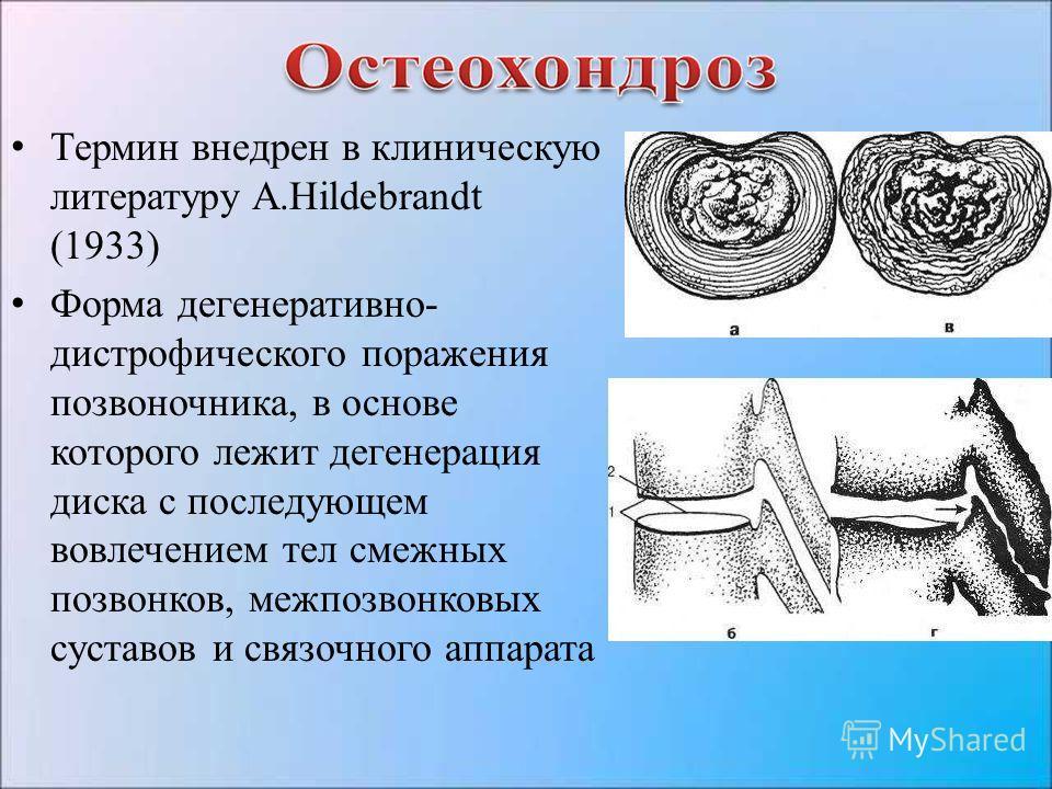 Термин внедрен в клиническую литературу A.Hildebrandt (1933) Форма дегенеративно- дистрофического поражения позвоночника, в основе которого лежит дегенерация диска с последующем вовлечением тел смежных позвонков, межпозвонковых суставов и связочного