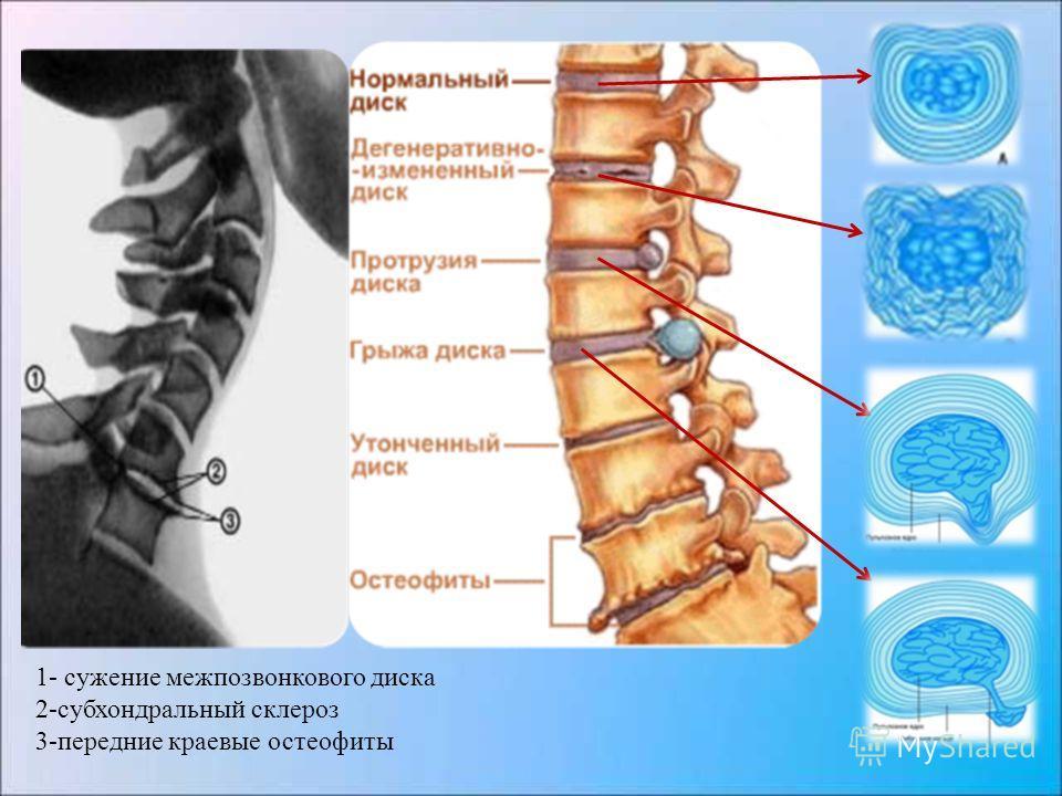 1- сужение межпозвонкового диска 2-субхондральный склероз 3-передние краевые остеофиты