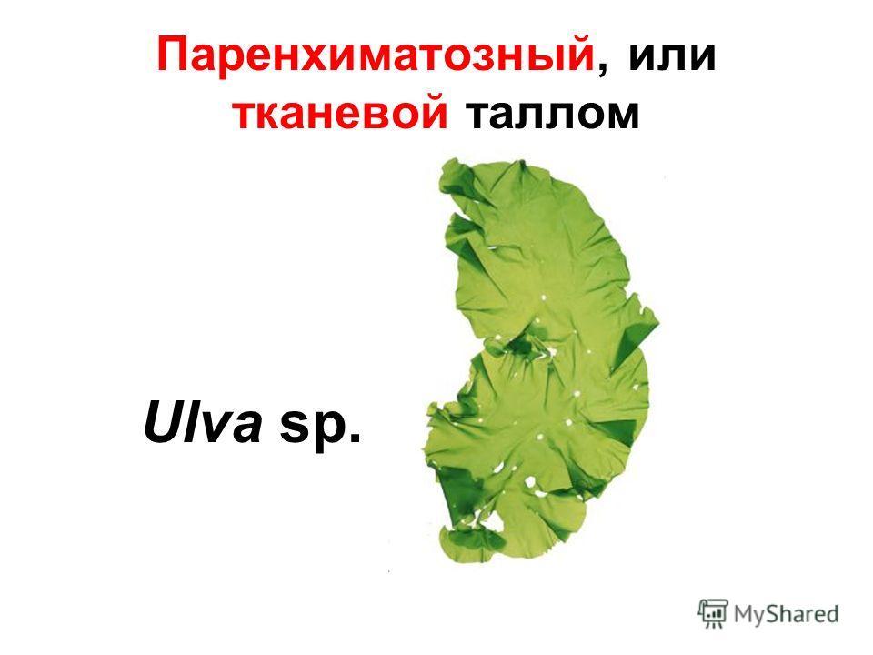 Паренхиматозный, или тканевой таллом Ulva sp.