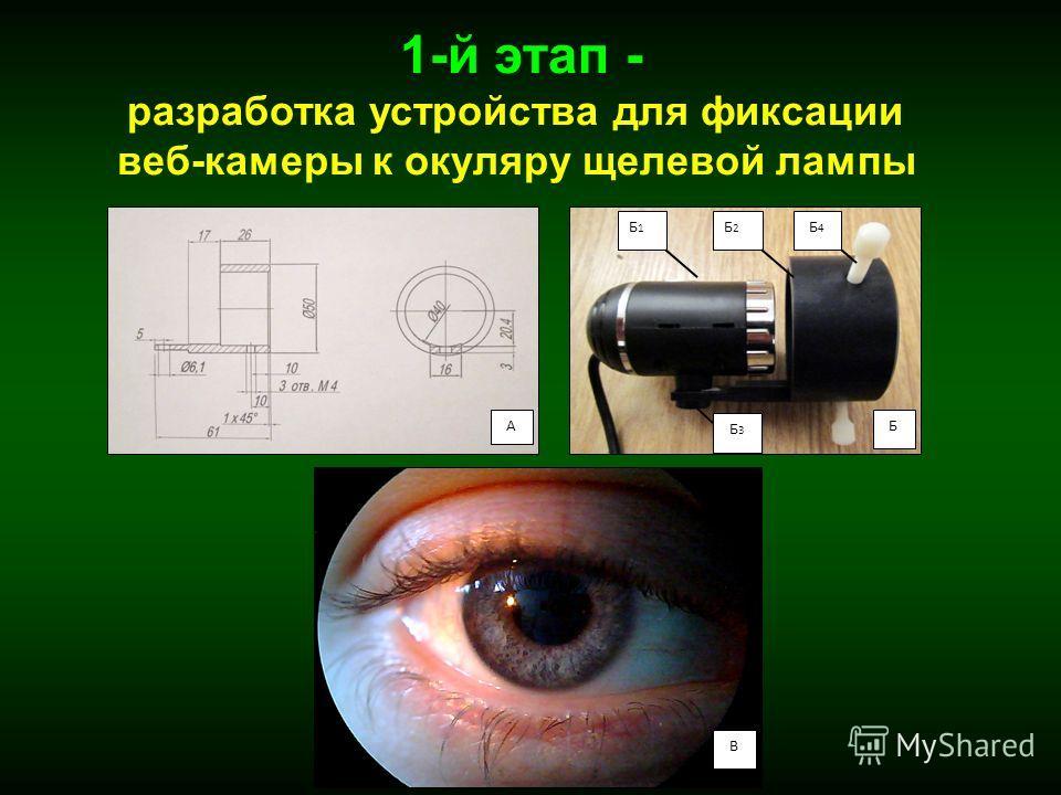 В Б1Б1 Б2Б2 Б4Б4 Б3Б3 АБ 1-й этап - разработка устройства для фиксации веб-камеры к окуляру щелевой лампы