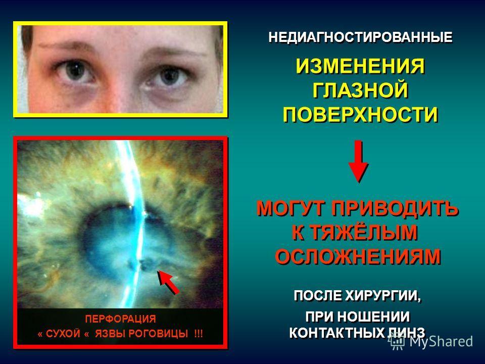 ПЕРФОРАЦИЯ « СУХОЙ « ЯЗВЫ РОГОВИЦЫ !!! НЕДИАГНОСТИРОВАННЫЕ ИЗМЕНЕНИЯ ГЛАЗНОЙ ПОВЕРХНОСТИ НЕДИАГНОСТИРОВАННЫЕ ИЗМЕНЕНИЯ ГЛАЗНОЙ ПОВЕРХНОСТИ МОГУТ ПРИВОДИТЬ К ТЯЖЁЛЫМ ОСЛОЖНЕНИЯМ ПОСЛЕ ХИРУРГИИ, ПРИ НОШЕНИИ КОНТАКТНЫХ ЛИНЗ МОГУТ ПРИВОДИТЬ К ТЯЖЁЛЫМ ОСЛ