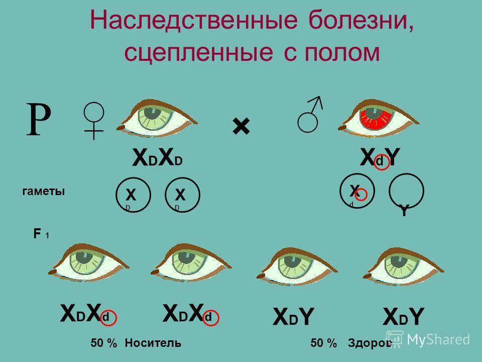 Наследственные болезни, сцепленные с полом Р × XDXDXDXD XDXdXDXd XDXdXDXd XdYXdY XDYXDYXDYXDY гаметы XDXD XDXD XdXd Y F 1 50 % Носитель50 % Здоров