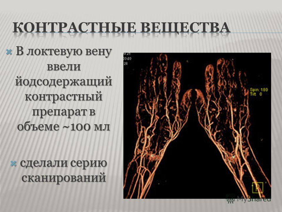 В локтевую вену ввели йодсодержащий контрастный препарат в объеме ~100 мл В локтевую вену ввели йодсодержащий контрастный препарат в объеме ~100 мл сделали серию сканирований сделали серию сканирований