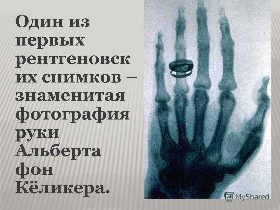 Один из первых рентгеновск их снимков – знаменитая фотография руки Альберта фон Кёликера.