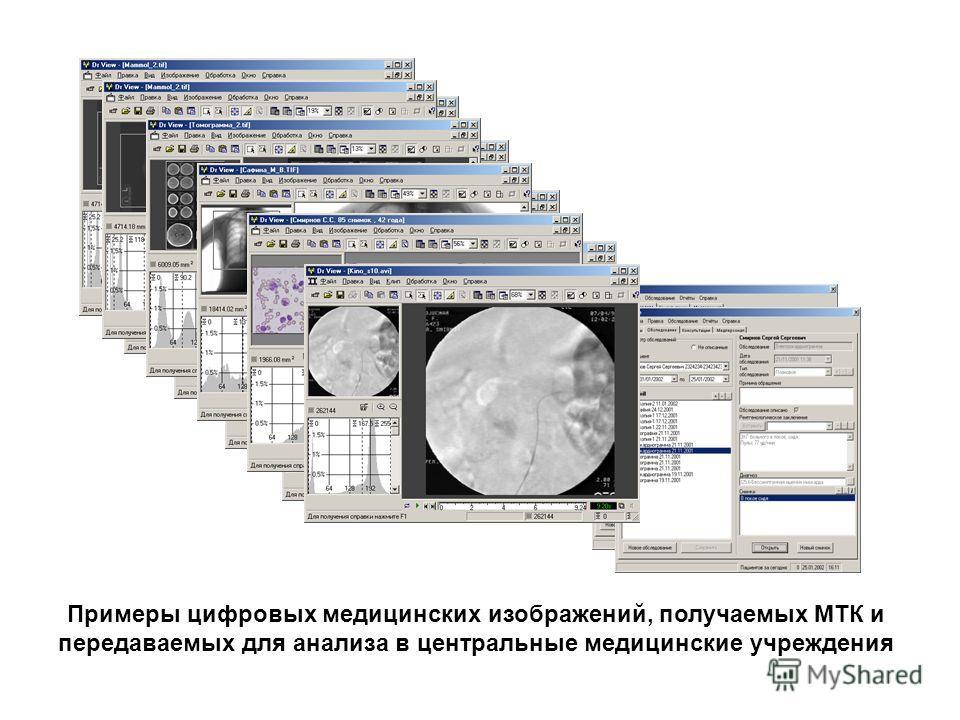 Примеры цифровых медицинских изображений, получаемых МТК и передаваемых для анализа в центральные медицинские учреждения