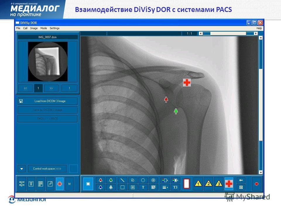 Взаимодействие DiViSy DOR с системами PACS