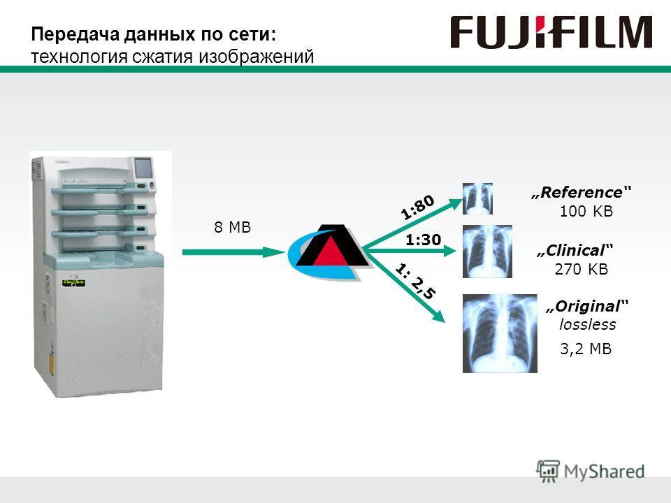 Original lossless Clinical Reference 1:80 1:30 1: 2,5 8 MB 100 KB 270 KB 3,2 MB Передача данных по сети: технология сжатия изображений