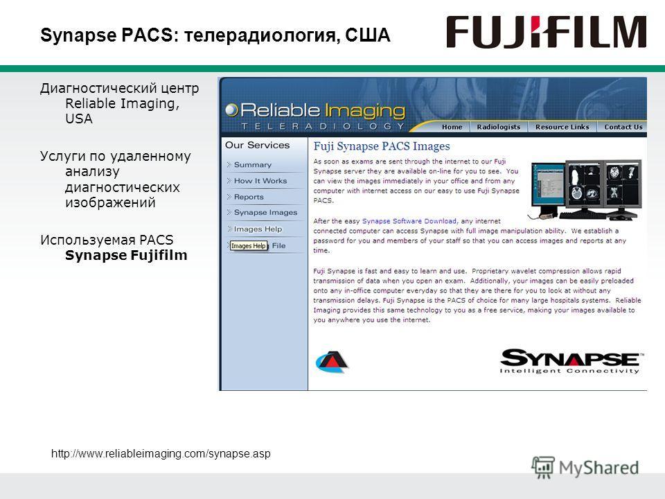 Synapse PACS: телерадиология, США Диагностический центр Reliable Imaging, USA Услуги по удаленному анализу диагностических изображений Используемая PACS Synapse Fujifilm http://www.reliableimaging.com/synapse.asp