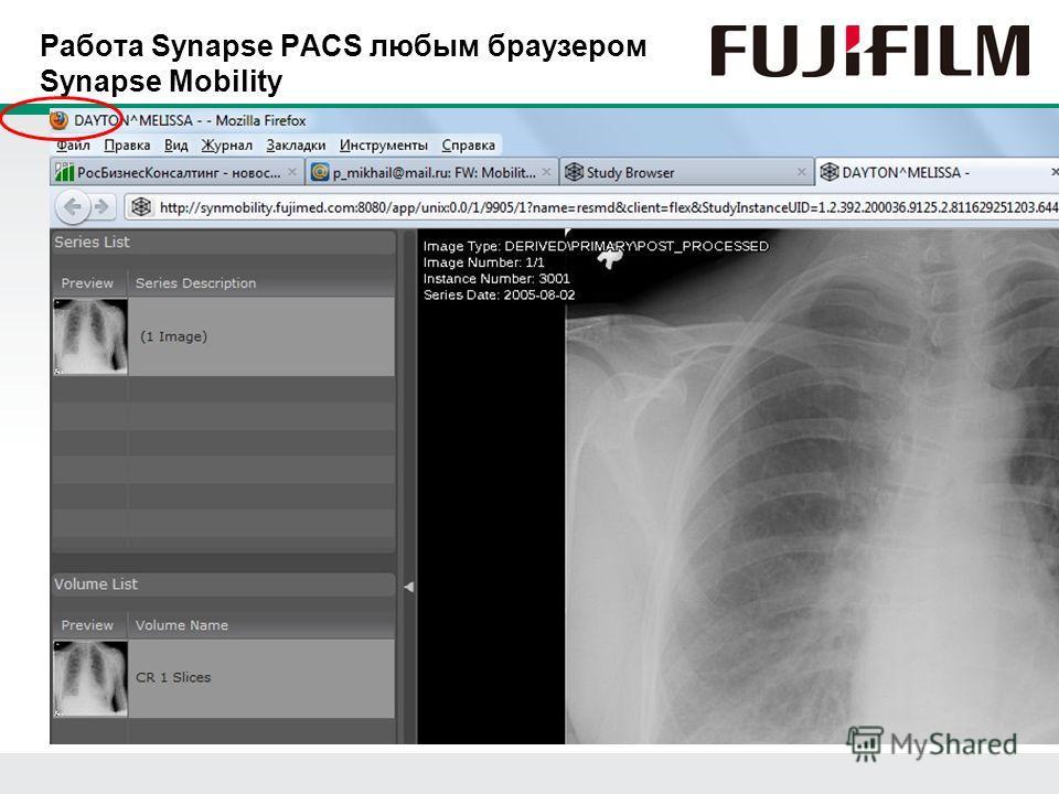 Работа Synapse PACS любым браузером Synapse Mobility