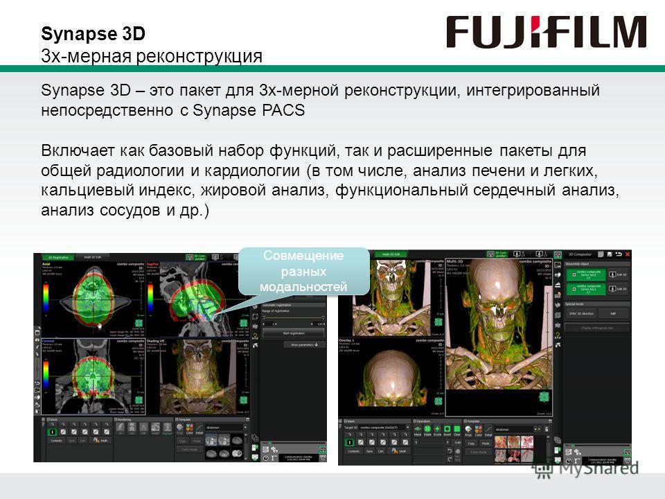 Совмещение разных модальностей Synapse 3D 3х-мерная реконструкция Synapse 3D – это пакет для 3х-мерной реконструкции, интегрированный непосредственно с Synapse PACS Включает как базовый набор функций, так и расширенные пакеты для общей радиологии и к