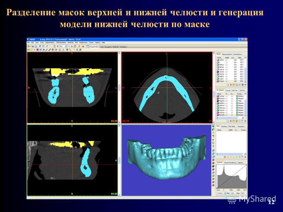 Разделение масок верхней и нижней челюсти и генерация модели нижней челюсти по маске 12